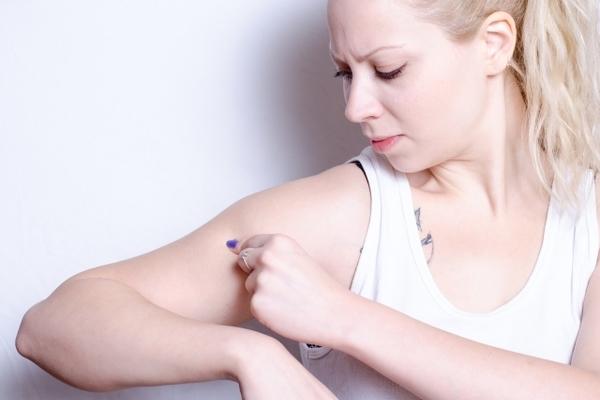 女性は必見!蚊に刺されたら早く治す方法あるよ〜