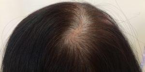 「にがり」が白髪と薄毛に効果があるって知ってました?