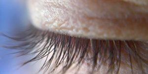 いく重にも重なってしまう瞼を二重にする方法